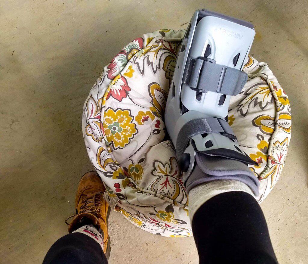 broken foot in cast on pillow